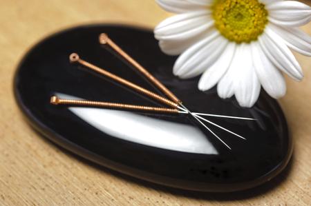 Foto de alternative medicine with acupuncture - Imagen libre de derechos