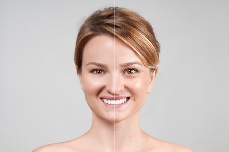Photo for Concept of skin rejuvenation. Woman before and after cosmetic or plastic procedure, anti-age therapy - Royalty Free Image