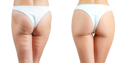 Foto de Female buttocks before and after treatment anti cellulite massage. Plastic surgery concept - Imagen libre de derechos