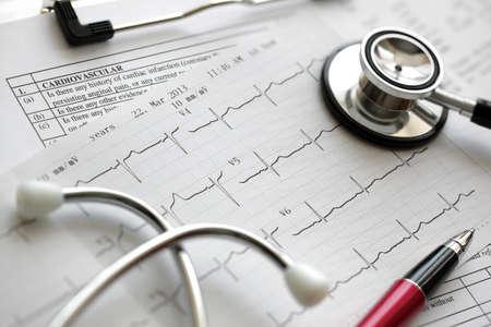 Foto de Cardiogram pulse trace and stethoscope concept for cardiovascular medical exam - Imagen libre de derechos