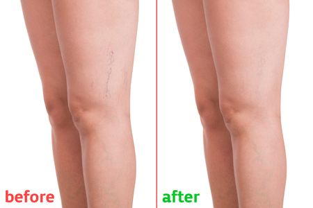 Photo for Treatment of varicose before and after. Varicose veins on the legs. - Royalty Free Image