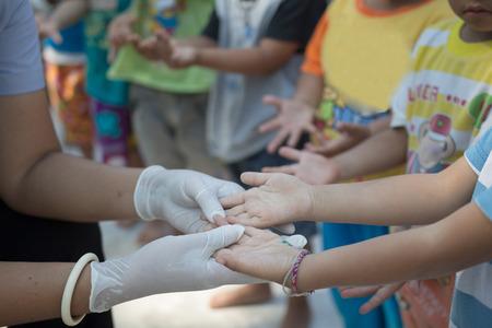 Foto de Hand foot mouth disease in child - Imagen libre de derechos