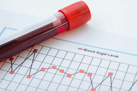 Photo pour Sample blood for screening diabetic test in blood tube on blood sugar control chart. - image libre de droit