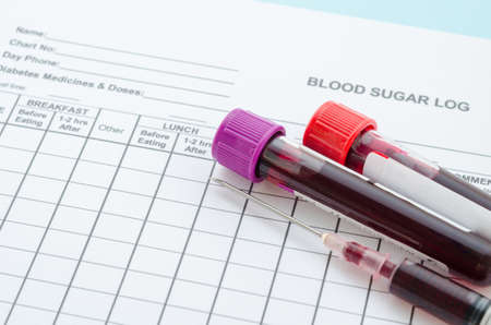 Foto de Daily blood Sugar log testing and sample blood in tube and syringe in laboratory. Blood sugar control concept. - Imagen libre de derechos