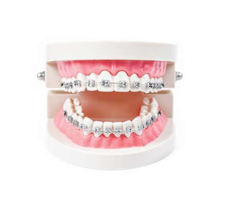 Foto de tooth model with metal wire dental braces isolated on white background. - Imagen libre de derechos
