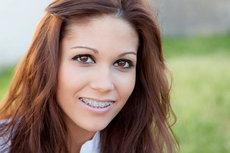 Foto de Portrait of a beautiful girl with brackets at the park - Imagen libre de derechos