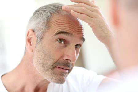 Foto de Senior man and hair loss issue - Imagen libre de derechos