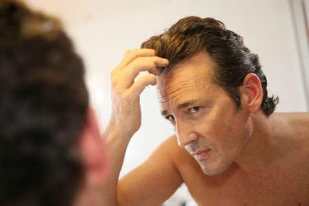 Foto de Middle-aged man concerned with hair loss - Imagen libre de derechos