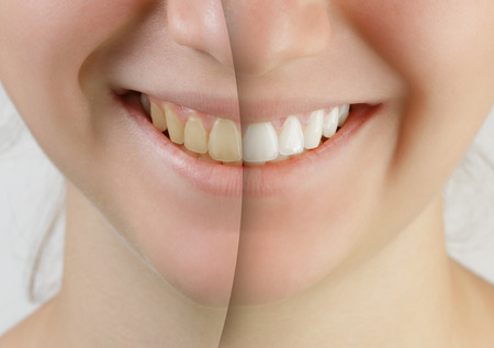 Photo pour teen girl smile before and after teeth whitening - image libre de droit