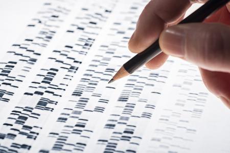 Foto de Scientists examined DNA gel that is used in genetics, medicine, biology, pharma research and forensics. - Imagen libre de derechos