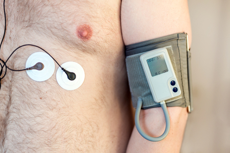 Foto de Holter monitor device and daily blood pressure recorder on human male body. Daily cardiogram monitoring. Overweight person. High risk of cardial disease. Health care and disease prevention. - Imagen libre de derechos
