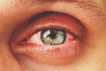 Foto de red eye of a patient with human conjunctivitis, retro toned - Imagen libre de derechos