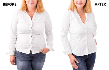 Foto de Woman posing before and after successful diet - Imagen libre de derechos