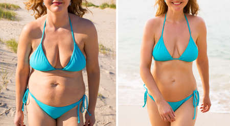 Photo for Before and after weight loss - Royalty Free Image