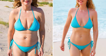 Photo for Woman before and after weight loss success - Royalty Free Image
