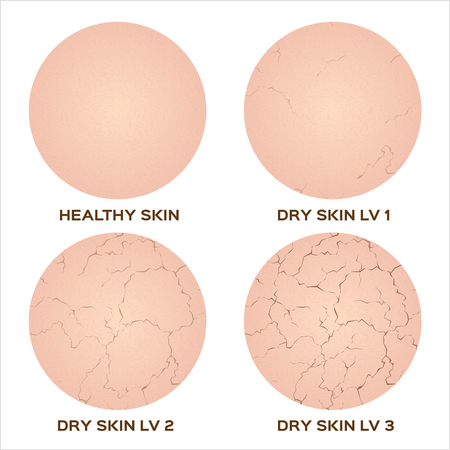 Illustration pour Webstep of healthy skin to dry skin texture , vector - image libre de droit