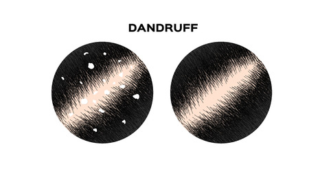 Photo for Dandruff on hair vector , closeup on skin - Royalty Free Image