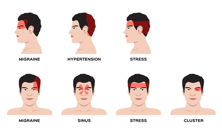 Illustration for An headache type vector  for organ and anatomy concept - Royalty Free Image
