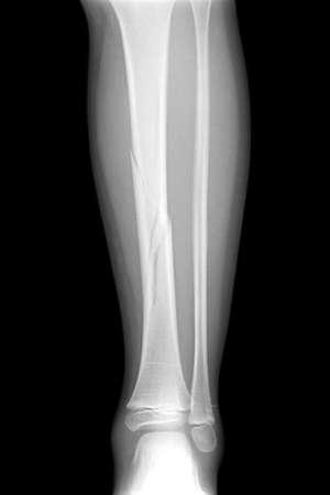 Broken leg x-rays image showing plate and screw fixation tibia and fibula bone