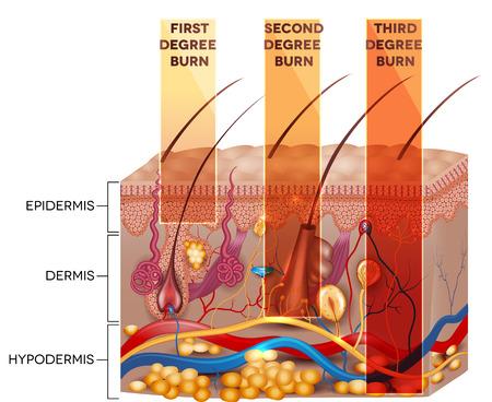 Illustrazione per Skin burn classification. First, second and third degree skin burns. Detailed skin anatomy. - Immagini Royalty Free