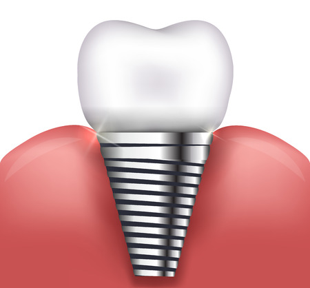 Illustration pour Dental implant beautiful bright illustration - image libre de droit