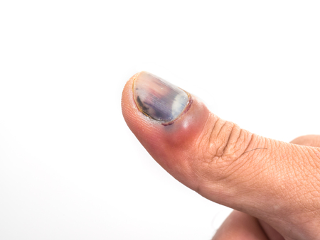 Foto de Bruise nail from accident of male hand isolated on white background - Imagen libre de derechos