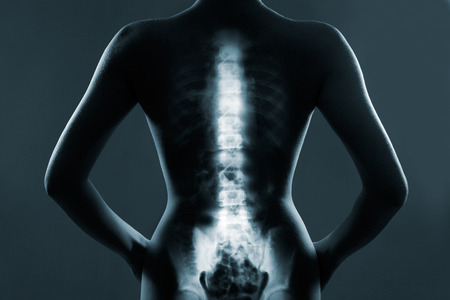 Photo for Human backbone in x-ray, on gray background - Royalty Free Image