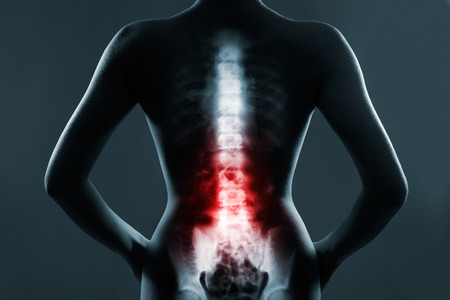 Photo for Human spine in x-ray, on gray background. The lumbar spine is highlighted by red colour. - Royalty Free Image