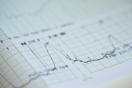 Foto de Printing of cardiogram report coming out from Electrocardiograph in labour ward - Imagen libre de derechos