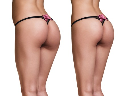 Weight loss. Photo of the buttocks before and after.
