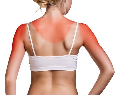 Photo for Sunburn female shoulder isolated on white background - Royalty Free Image