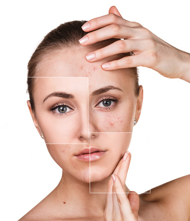 Photo pour Woman with problem skin on her face before and after treatment over white background - image libre de droit