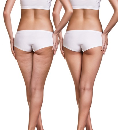 Photo for Female buttocks before and after cellulite skin isolated on white - Royalty Free Image