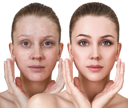Photo for Woman before and after treatment and makeup. - Royalty Free Image