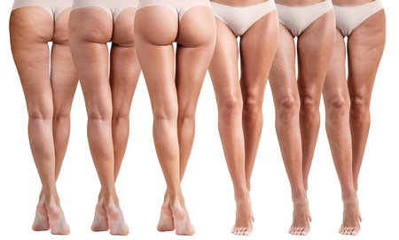 Foto de Female buttocks before and after treatment. - Imagen libre de derechos