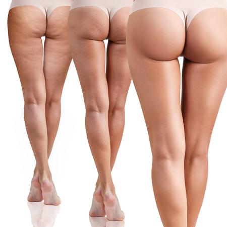 Foto de Female buttocks before and after cellulitis. - Imagen libre de derechos