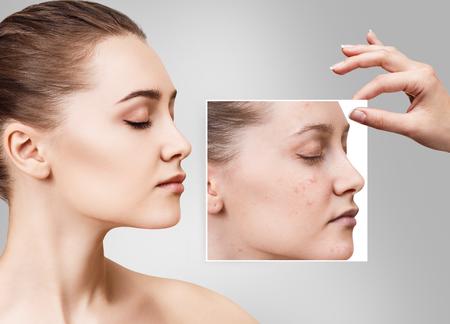 Photo pour Woman shows photo with bad skin before treatment. - image libre de droit