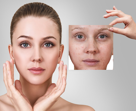 Photo pour Woman shows photo with bad skin before treatment. - image libre de droit
