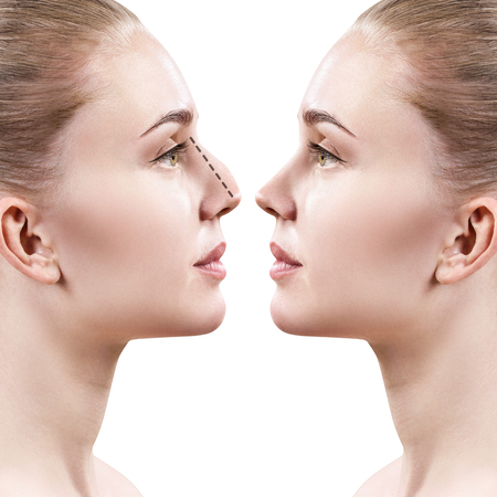 Photo for Female nose before and after cosmetic surgery. - Royalty Free Image