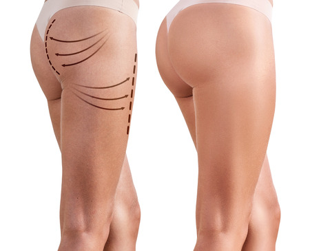 Womans buttocks before and after plastic surgery