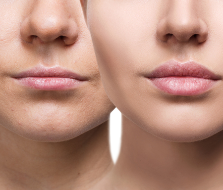 Photo for Lips of young woman before and after augmentation - Royalty Free Image