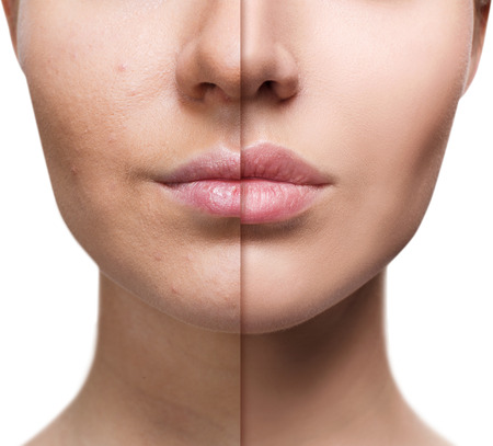 Photo pour Lips of young woman before and after augmentation - image libre de droit