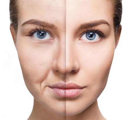 Photo pour Womans face before and after rejuvenation. - image libre de droit