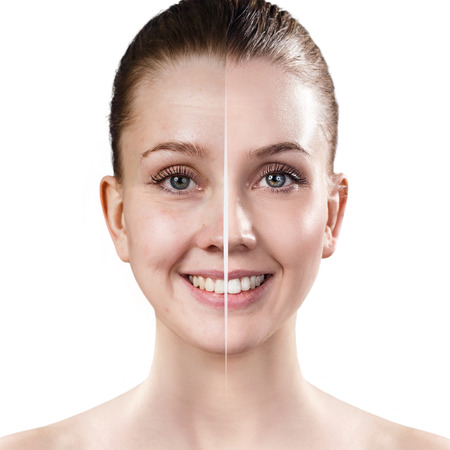 Photo pour Womans face before and after rejuvenation. - image libre de droit