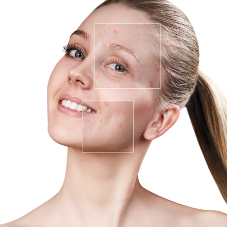 Photo for Womans face before and after treatment - Royalty Free Image