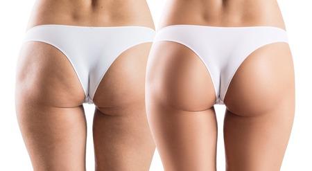 Photo pour Female buttocks before and after treatment. - image libre de droit
