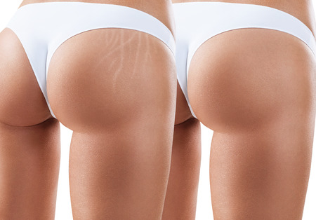 Photo for Hips with scars before and after treatment. - Royalty Free Image