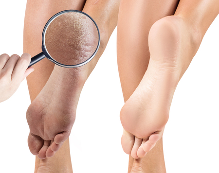 Foto de Female feet with dry skin and cracks before and after treatment. Zoom by magnifying glass. Isolated on white background. - Imagen libre de derechos