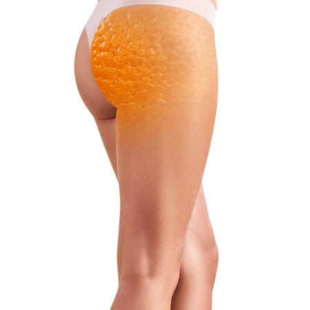 Photo for Female buttocks with orange peel texture. - Royalty Free Image