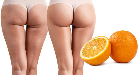 Photo pour Female buttocks before and after treatment. - image libre de droit